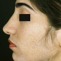 Hirsutismus. Ausgeprägte Gesichtsbehaarung bei zwanzigjähriger Frau.