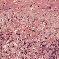 Histoplasmose. Hautbefall bei chronischer Histoplasmose. Unspezifisches lympho-histiozytäres Gran...