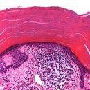 Hyperkeratosis lenticularis perstans. Mächtige, kompakte Orthohyperkeratose mit fokaler Parakerat...