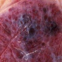 Hämangiom, kavernöses. Auflichtmikroskopie: Ausschnitt einer Läsion vom Oberschenkel einer 39-jäh...