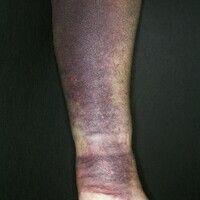 Hämatom. Nach einem Sturz auf den linken Unterarm aufgetretene, flächenhafte, bläuliche Verfärbun...