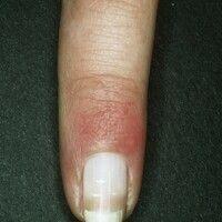 Halb- und Halbnägel. Weißfärbung der proximalen Nagelplattenhälfte und scharf abgegrenzte Rot- od...