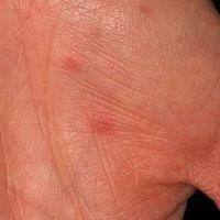 Hand-Fuß-Mund-Krankheit, schmerzhafte 0,3 cm große Erytheme und Papeln.