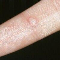 Hand-Fuß-Mund-Krankheit. Schmerzhafte entzündliche Bläschen im Bereich der Fingerbeugeseite.