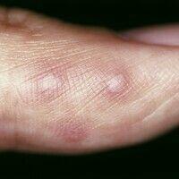 Hand-Fuß-Mund-Krankheit. Wenige, akute, disseminierte, schmerzhafte, schubweise aufschießende, po...