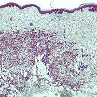 Hautmetastase. Zytokeratin-positive Metastase eines Mammakarzinoms.