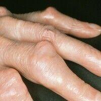 Heberdensche Arthrose. Knoten im Bereich der Mittelfingergelenke im Rahmen einer Polyarthrose. 86...
