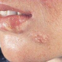 Herpes-simplex-Virus-Infektion. Zwei benachbarte Herde an der Unterlippe bzw. am Kinn. Klassische...