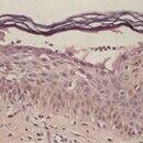 Impetigo contagiosa. Subkorneale Blasenbildung. Im Lumen zeigen sich zahlreiche neutrophile Granu...