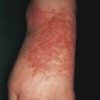 Infantiles akrolokalisiertes papulo-vesikulöses Syndrom. Multiple, teilweise konfluierende Papeln...