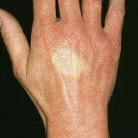 Irisblendenphänomen. Akrozyanose mit rundlichem abgeblassten Areal nach Anämisierung mittels Fing...