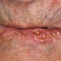 Plattenepithelkarzinom der Haut: die linke Hälfte der Unterlippe umfassende, stellenweise das Lip...
