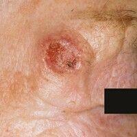 Plattenepithelkarzinom der Haut: seit 6 Monaten langsam wachsender, auf der Unterlage verschiebli...