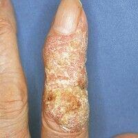 Plattenepithelkarzinom der Haut: großflächige, nach proximal scharf begrenzte, mit flächigen Horn...