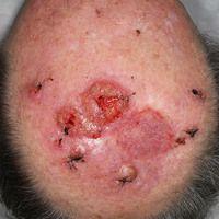 Plattenepithelkarzinom der Haut: großflächiges desmoplastisches Karzinom der Kopfhaut, das sich w...