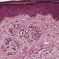 Dermatoliposklerose. Reaktive, gutartige, lobulär organisierte, vaskuläre Neubildung bei CVI und ...