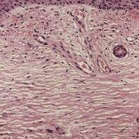 Dermatoliposklerose. Dermatosklerose bei CVI mit geringer Akanthose bei orthokeratotischer Verhor...