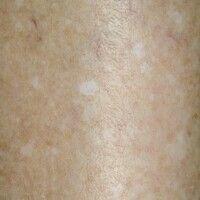 Hypomelanosis guttata idiopathica. Multiple, seit Monaten/Jahren persistierende, 0,2-0,4 cm große...