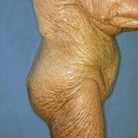 Ichthyosis congenita. Generalisierter Hautbefall. Die flächenhaft bräunlich verfärbte Haut liegt ...