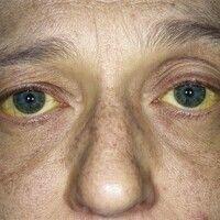 Ikterus. Ikterus bei einer 48-jährigen Patientin mit metastasiertem Gallengangskarzinom. Gleichmä...