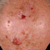 """Keratosis actinica, keratotischer Typ. Flächenhafte """"Feldkanzerisierung"""" der Kopfhaut.Beginnend..."""