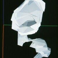 Keratosis follicularis. Dreidimensionale Rekonstruktion eines Follikels.