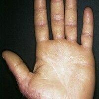 Keratosis palmoplantaris cum degeneratione granulosa. Bei dem 25-jährigen Mann besteht eine chron...