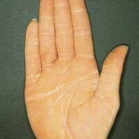 Keratosis palmoplantaris diffusa circumscripta. Angeborene, massive, gleichmäßig verteilte, wachs...