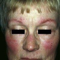 Keratosis pilaris-Syndrom. Keratosis pilaris-Syndrom mit Ulerythema ophryogenes. Kleine, follikul...