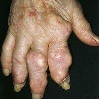 Rheumaknoten. Hautfarbene, glatte, nicht schmerzhafte, verschiebliche Knoten. Auftreten nicht nur...