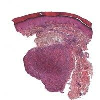 Rheumaknoten. In der tiefen Dermis und im angrenzenden subkutanen Fettgewebe gelegenes, scharf be...