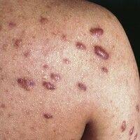 Keloid. 20 Jahre alter Patient. Seit der Pubertät bekannte Acne vulgaris. Wochen bis Monate nach ...