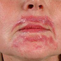 Keloid.Entstanden nach einem kosmetischen Eingriff zur Straffung der Gesichtshaut.