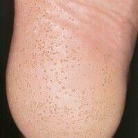 Keratoma sulcatum. Disseminierte, wie ausgestanzt wirkende, kleinste Hornschichtdefekte; deutlich...