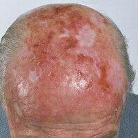 Keratosis actinica:Nebeneinander von erythematösen und verhornten Arealen im Bereich des haarlos...