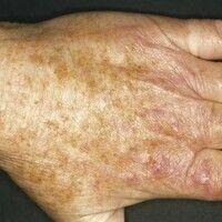 Keratosis actinica erythematöser Typ: Chronischer Lichtschaden der Handrücken mit multiplenwenig...