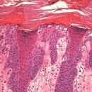 Keratosis actinica. Wichtiges differentialdiagnostisches Kriterium der aktinischen Keratose (Abgr...