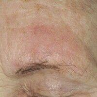 Keratosis actinica, lichenoider Typ. Sehr diskrete, solitäre, oberhalb der linken Augenbraue loka...
