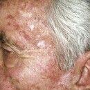 Keratosis actinica. Multiple, nur im Gesicht lokalisierte, chronisch stationäre, disseminierte, 0...