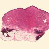 Leiomyosarkom. Kutanes Leiomyosarkom: Unscharf begrenzter Tumorknoten der auf breiter Front die g...