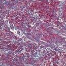 Leiomyosarkom. Kutanes Leiomyosarkom: Faszikulärer Aufbau der miteinander verwobenen Tumorstränge...