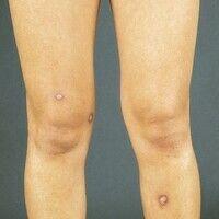 Leishmaniose, kutane. Disseminierte, bräunliche, nicht schmerzhafte Knoten im Bereich beider Bein...