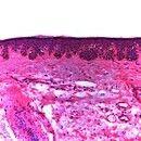 Lentigo solaris. Unregelmäßige, knopfartige Akanthose mit Hyperpigmentierung. Orthokeratose. Ausg...