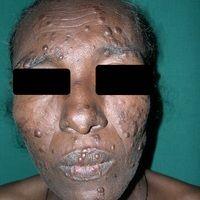 Lepra. Lepra lepromatosa (-LL-).Papeln und Knoten in diffuser Verteilung.