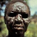 Lepra lepromatosa: schwerster Verlauf einer Lepra leprormatosa mit multiplen z.T konfluierten, g...