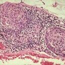 Lepra tuberculoides. Histologie: Zerstörter kleiner Nerv im subkutanen Fettgewebe.