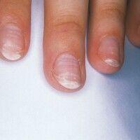 Leukonychie. In Querstreifen verlaufende Weißfärbungen der Nagelplatte bei einer 20-jährigen Frau...