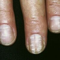 Leukonychie. Periodische, punkt- oder streifenförmige Weißfärbungen der Nagelplatte, die einen od...