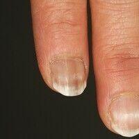 Leuconychia striata. Detailausschnitt: Die 48-jährige Patientin berichtete über eine farbliche Ve...