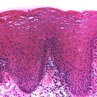 Leukoplakie, orale. Benigne orale Leukoplakie. Unregelmäßige Akanthose, Fehlen von Zell- und Kern...
